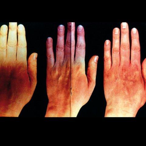 Érszűkület szűrés ultrahanggal