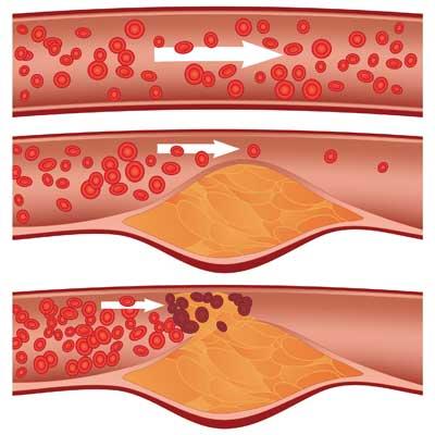 ultrahang vénák a lábakon visszér